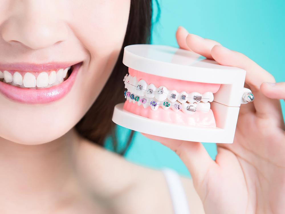จัดฟัน ยางจัดฟัน จัดฟันแบบเซรามิก